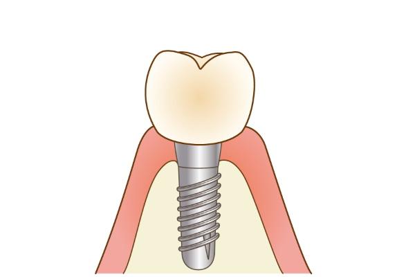 implant006 - コピー